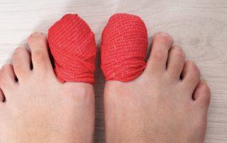 preventing lost toenails when running